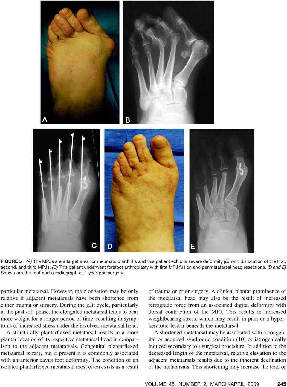 However, the elongation may be only relative if adjacent metatarsals have been shortened from either trauma or surgery.