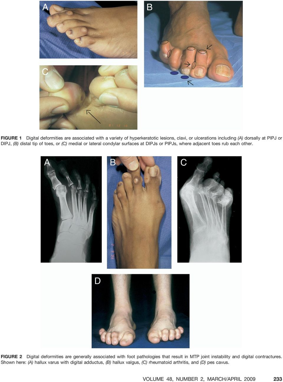 FIGURE 2 Digital deformities are generally associated with foot pathologies that result in MTP joint instability and digital contractures.