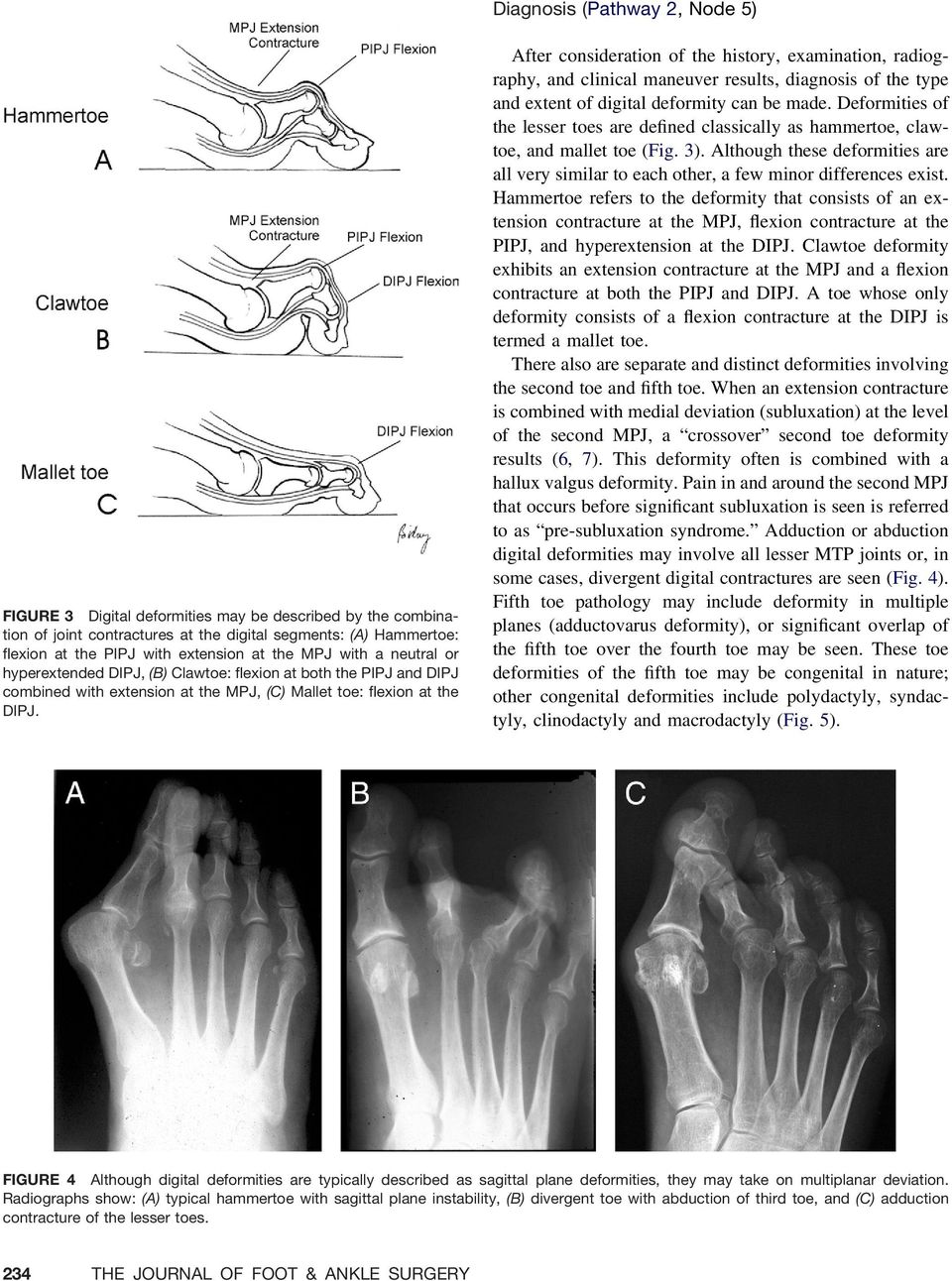 After consideration of the history, examination, radiography, and clinical maneuver results, diagnosis of the type and extent of digital deformity can be made.
