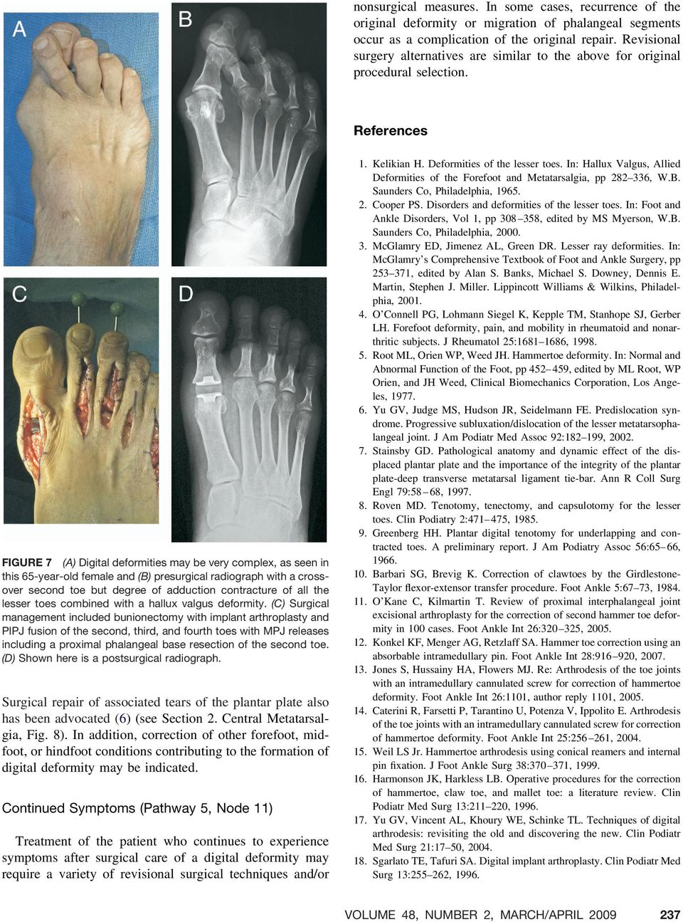 References FIGURE 7 (A) Digital deformities may be very complex, as seen in this 65-year-old female and (B) presurgical radiograph with a crossover second toe but degree of adduction contracture of
