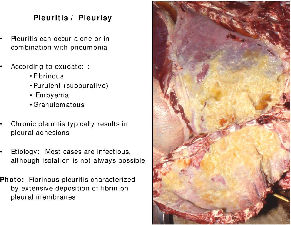 results in pleural adhesions Etiology: Most cases are infectious, although isolation is not