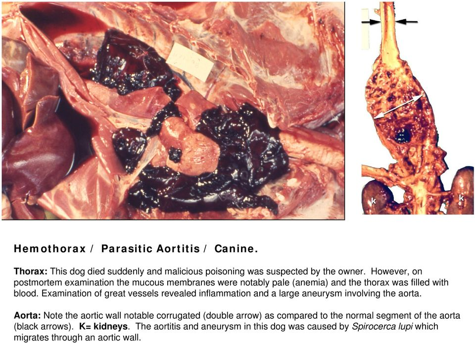 Examination of great vessels revealed inflammation and a large aneurysm involving the aorta.