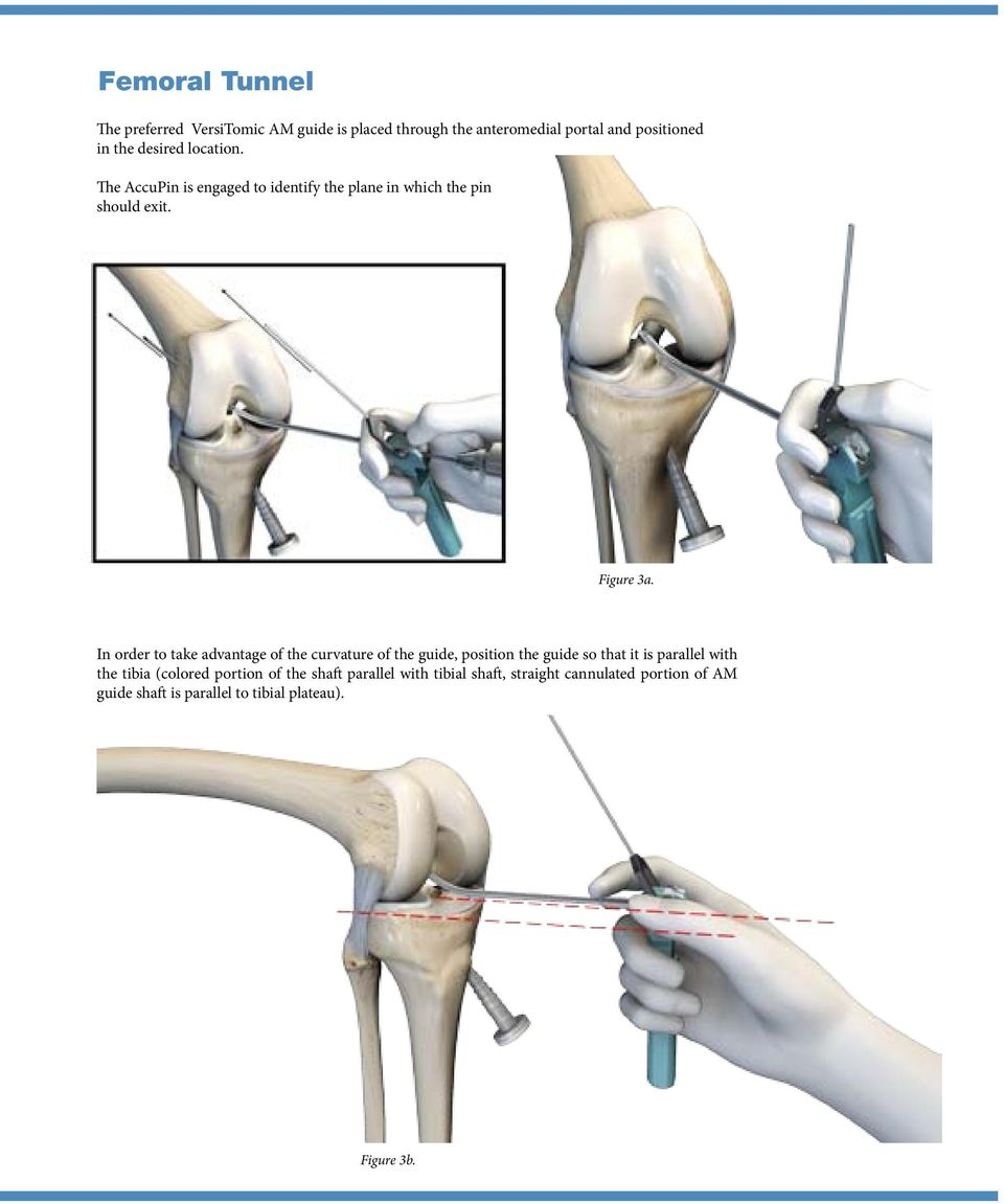 In order to take advantage of the curvature of the guide, position the guide so that it is parallel with the tibia