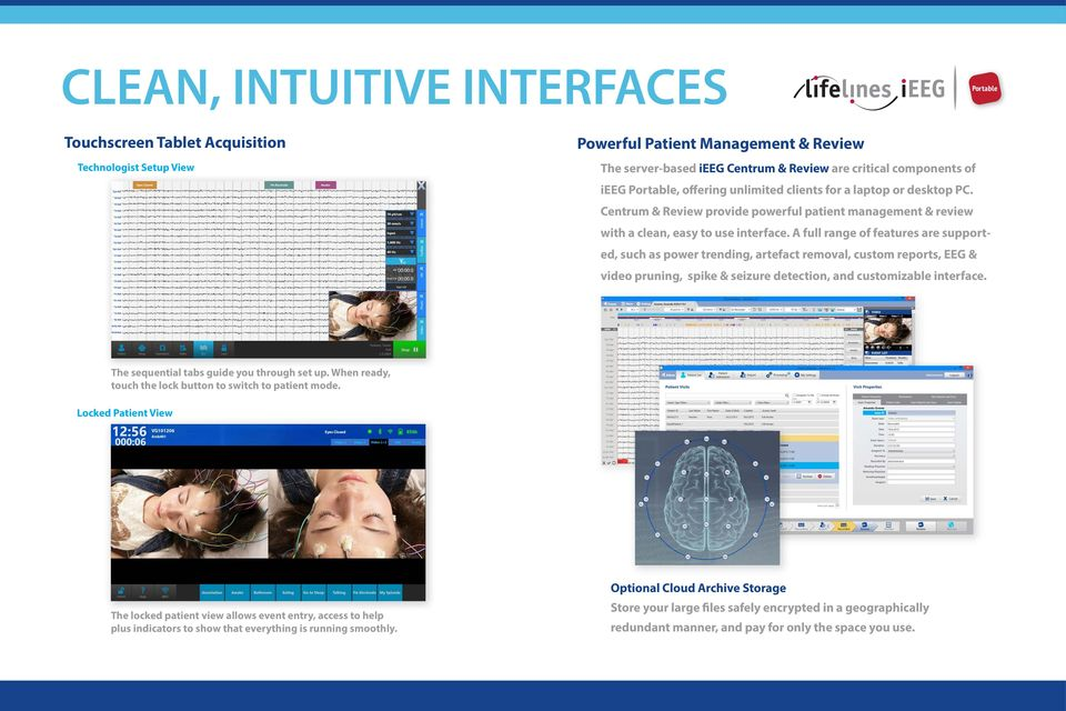 A full range of features are supported, such as power trending, artefact removal, custom reports, EEG & video pruning, spike & seizure detection, and customizable interface.