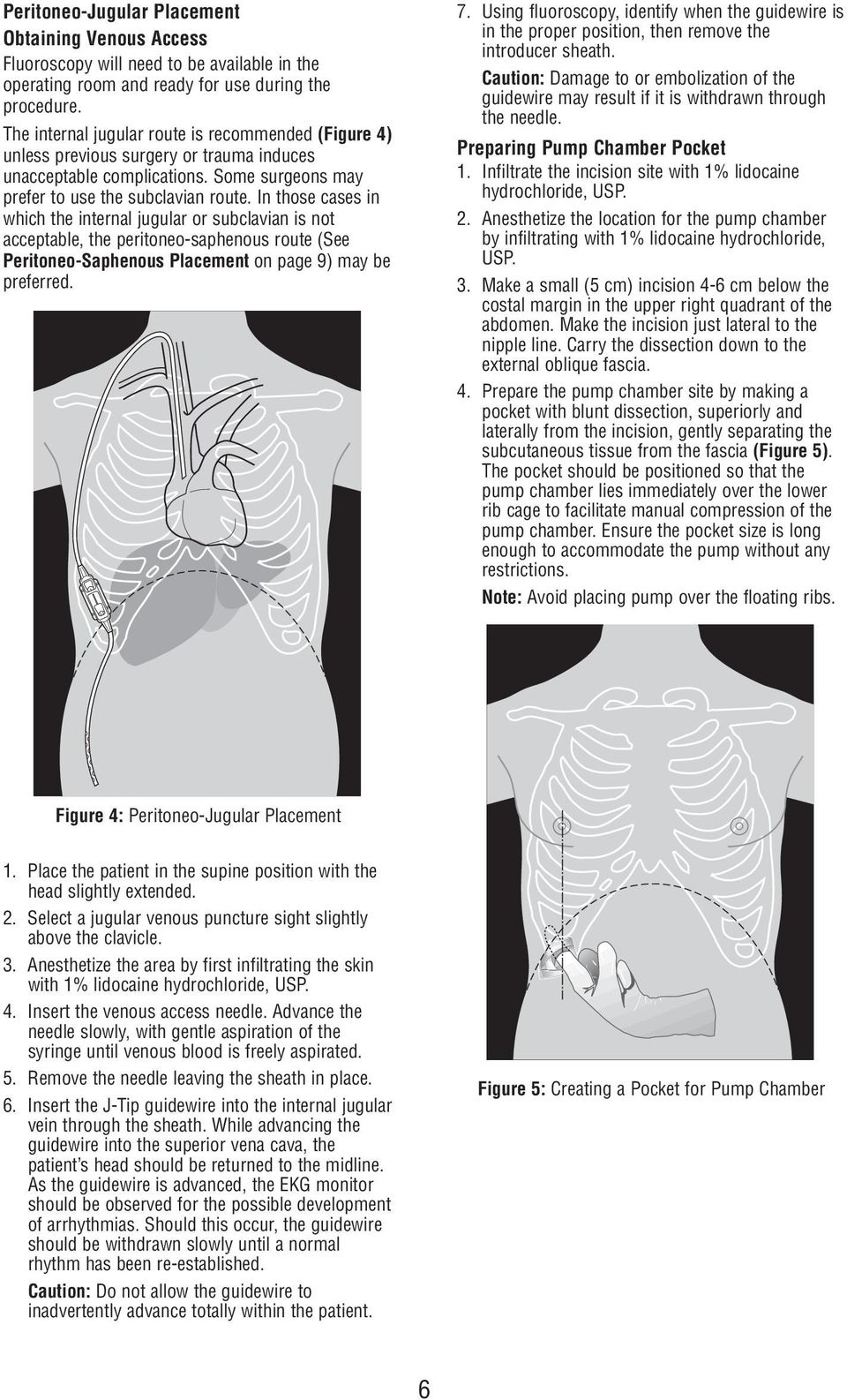 In those cases in which the internal jugular or subclavian is not acceptable, the peritoneo-saphenous route (See Peritoneo-Saphenous Placement on page 9) may be preferred. 7.