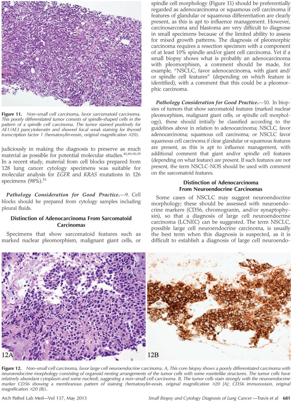 The diagnosis of pleomorphic carcinoma requires a resection specimen with a component of at least 10% spindle and/or giant cell carcinoma.