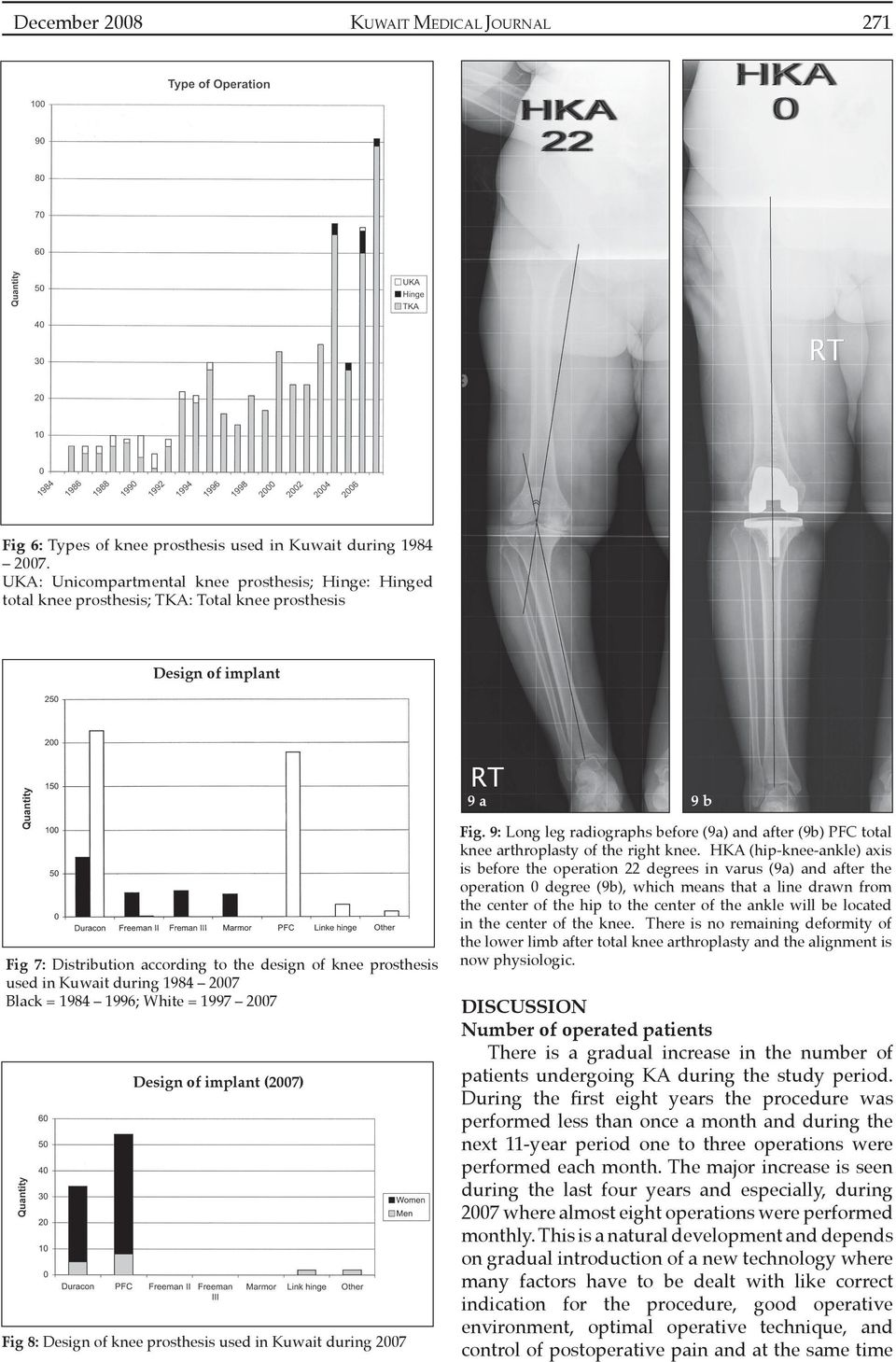 Kuwait during 1984 2007 Black = 1984 1996; White = 1997 2007 Design of implant (2007) Fig 8: Design of knee prosthesis used in Kuwait during 2007 Fig.