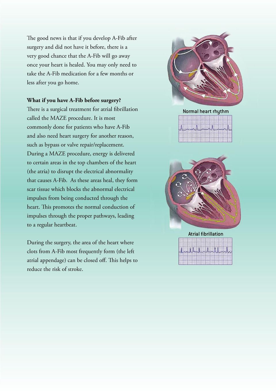 There is a surgical treatment for atrial fibrillation called the MAZE procedure.