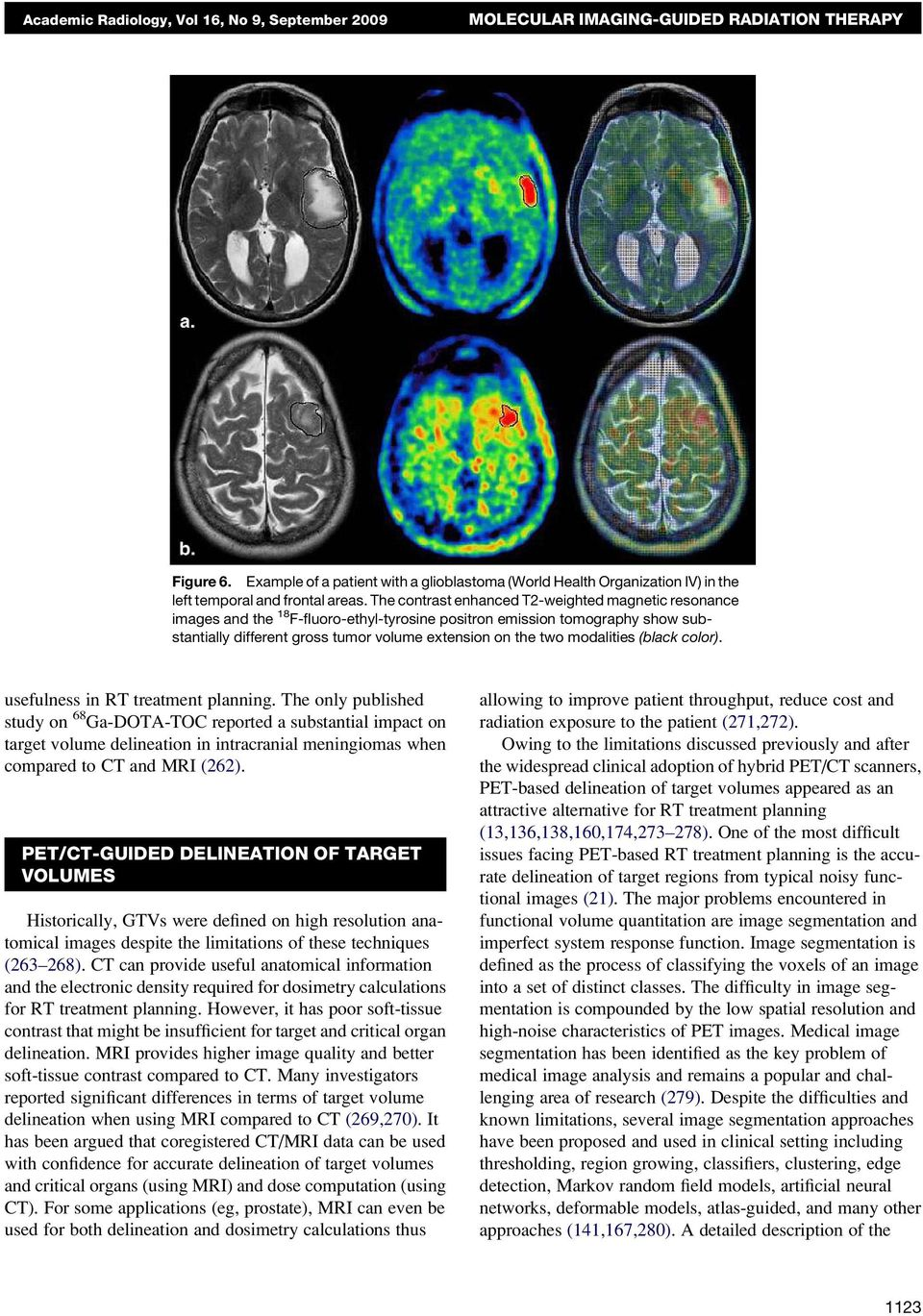 The contrast enhanced T2-weighted magnetic resonance images and the 18 F-fluoro-ethyl-tyrosine positron emission tomography show substantially different gross tumor volume extension on the two