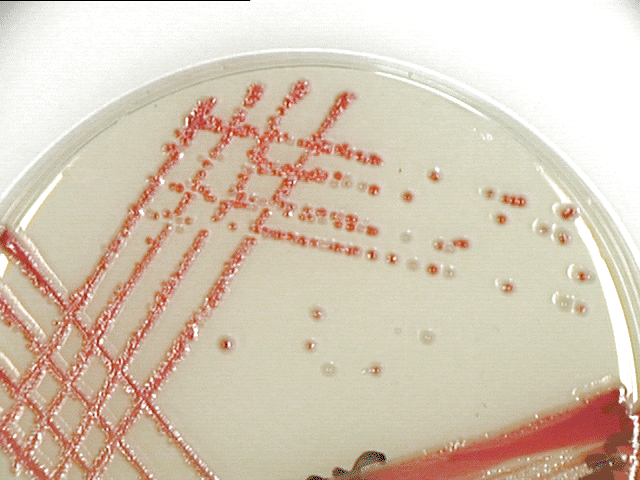 Serratia marcescens. These gram negative rods produce mucoid colonies which have entire margins and umbonate elevation. Note that there are both red and white colonies present on this plate.