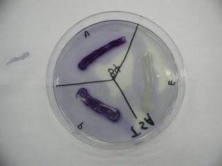 Oxidase Test: Used to demonstrate the ability of a bacterium to produce the enzyme cytochrome- c oxidase, capable of reducing oxygen.