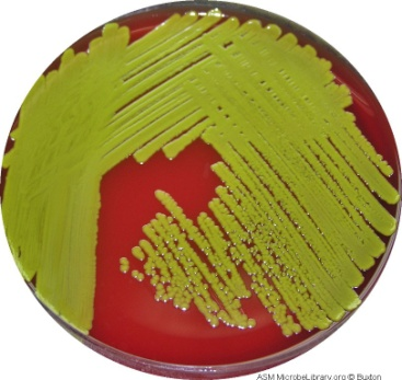 Blood Agar used for the detection of hemolytic activity of microorganisms. alpha (α) hemolysis: green halo around colony.