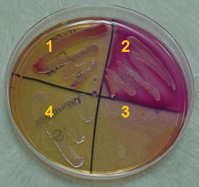 MacConkey Agar: Demonstrates the ability of a gram negative bacterium to metabolize Lactose. MacConkey agar is both a selective and differential medium frequently used in culture testing.