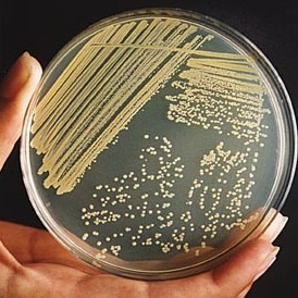 Pseudomonas This gram negative rod forms mucoid colonies with umbonate elevation.