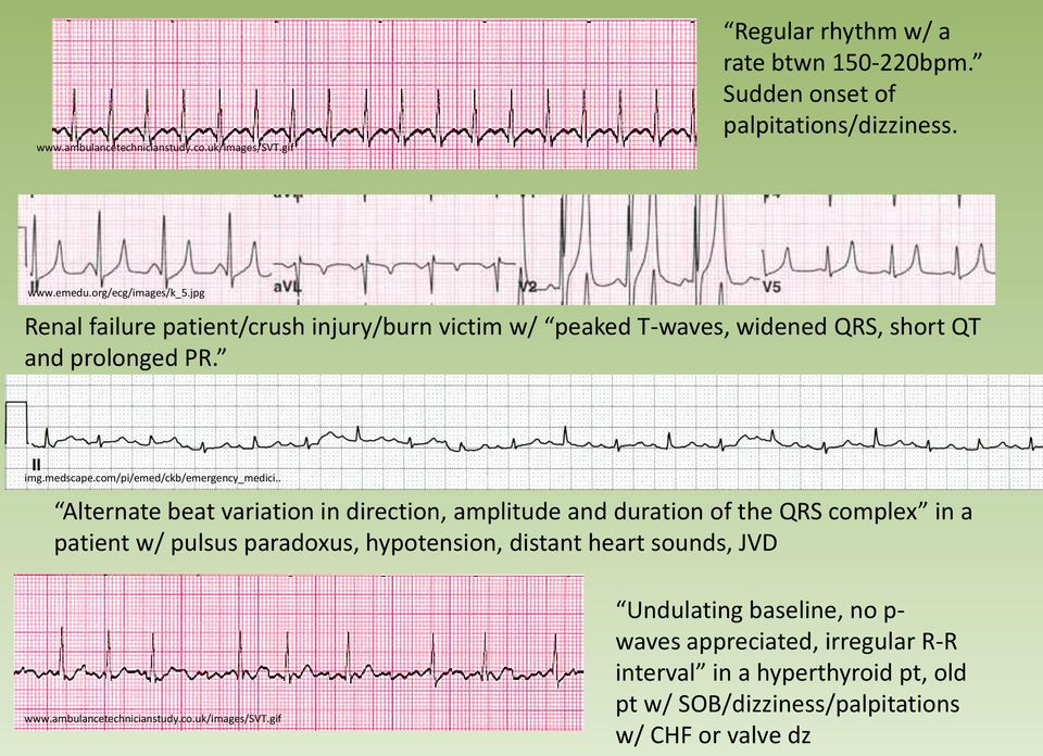 . Alternate beat variation in direction, amplitude and duration of the QRS complex in a patient w/ pulsus paradoxus, hypotension, distant heart sounds, JVD www.