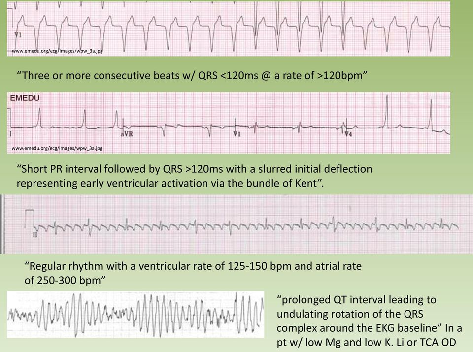 slurred initial deflection representing early ventricular activation via the bundle of Kent.