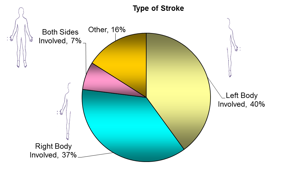 Stroke Program Information The Stroke Program at TIRR Memorial Hermann has a team of physicians, therapists, nurses, case managers and social workers dedicated to expert care of persons with stroke.