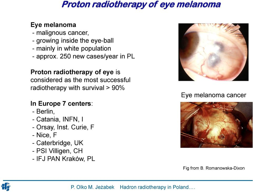 250 new cases/year in PL Proton radiotherapy of eye is considered as the most successful radiotherapy with