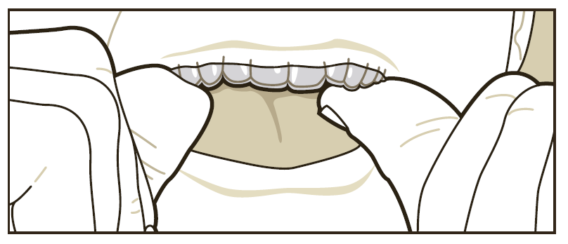 3. Handle only ONE aligner at a time. 4. Rinse your aligners when removing them from the packaging. Aligner Insertion 1.