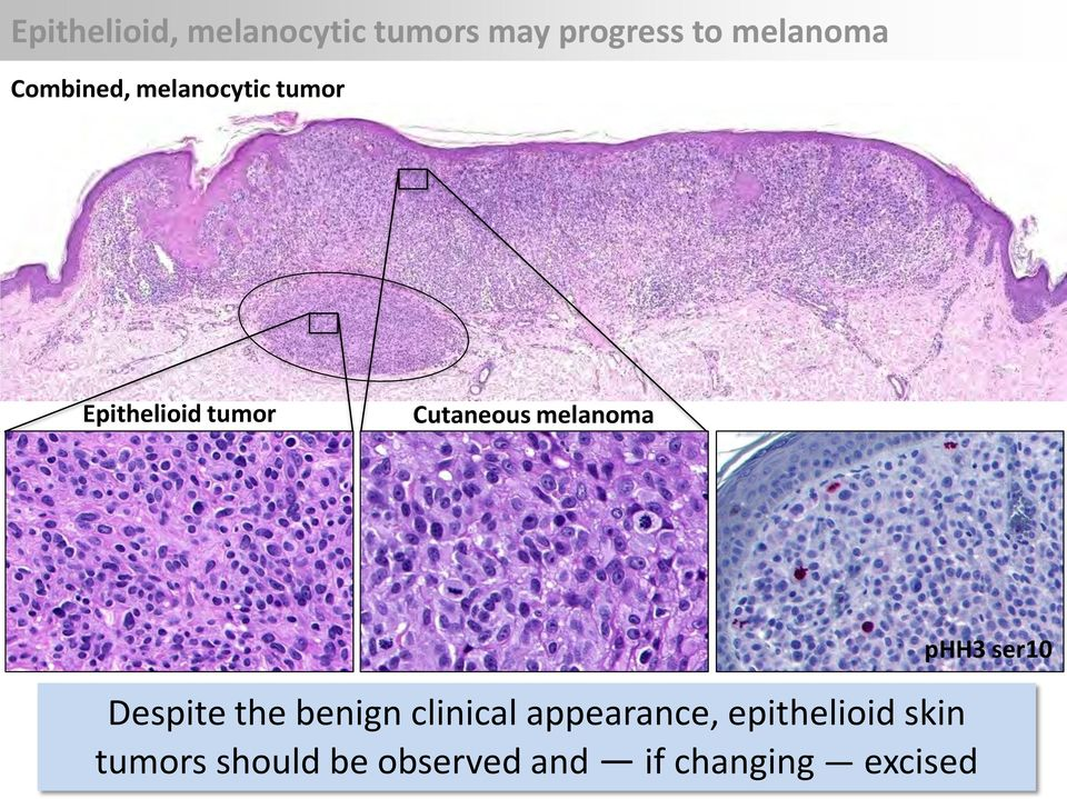 melanoma Despite the benign clinical appearance,