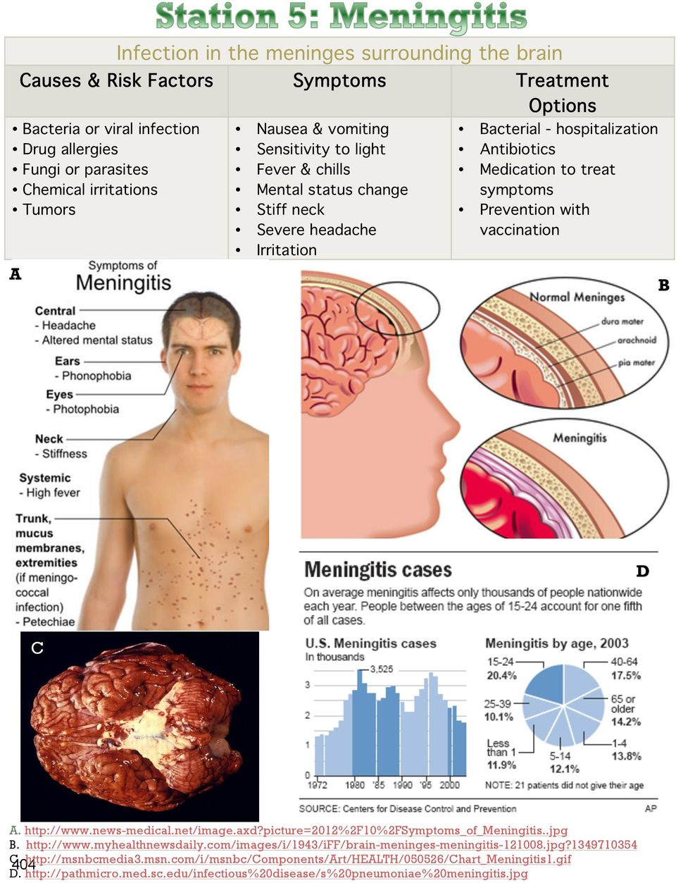 with vaccination A B D C A. http://www.news-medical.net/image.axd?picture=2012%2f10%2fsymptoms_of_meningitis..jpg B. http://www.myhealthnewsdaily.