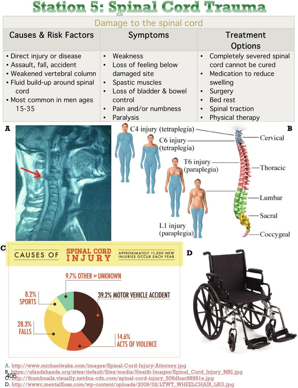 to reduce swelling Surgery Bed rest Spinal traction Physical therapy B C C D A. http://www.michaelwaks.com/images/spinal-cord-injury-attorney.jpg C B. https://ufandshands.