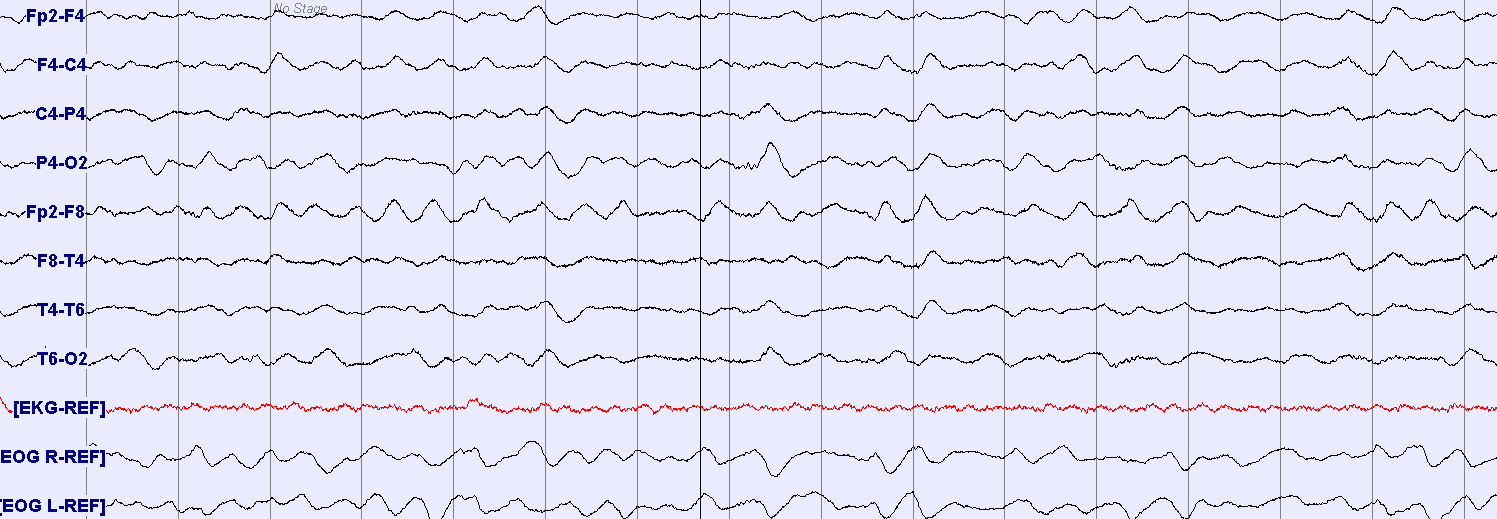 EEG in hypoglycemic encephalopathy A case of profound