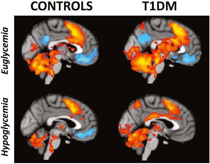 Functional imaging in hypoglycemia Brain activation during working memory is altered