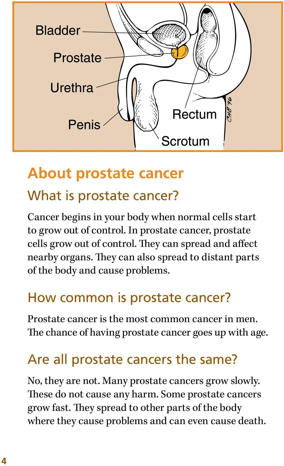 How common is prostate cancer? Prostate cancer is the most common cancer in men. The chance of having prostate cancer goes up with age.