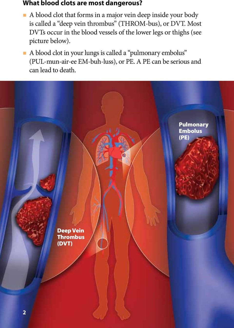 or DVT. Most DVTs occur in the blood vessels of the lower legs or thighs (see picture below).