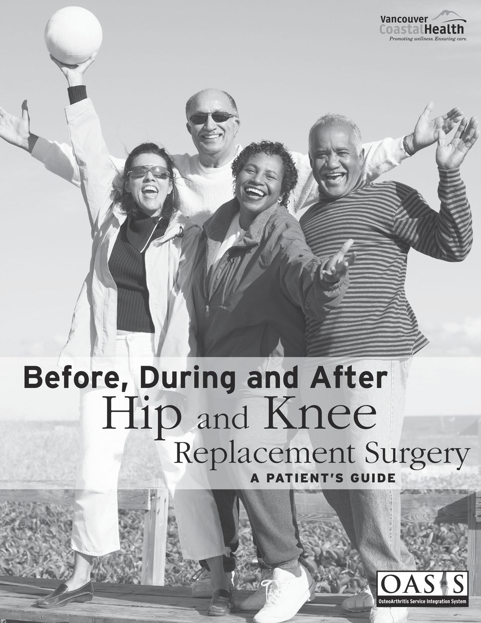 Replacement Surgery