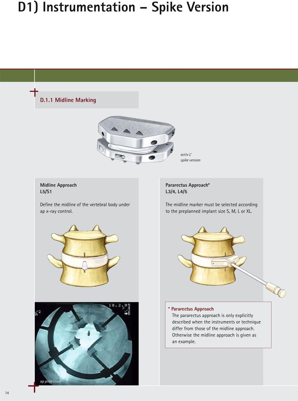 Pararectus Approach* L3/4, L4/5 The midline marker must be selected according to the preplanned implant size S, M, L or XL.