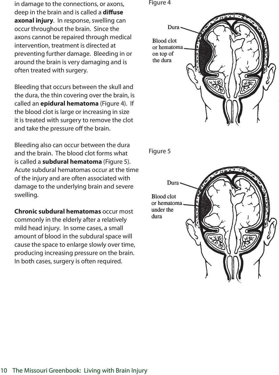 Figure 4 Bleeding that occurs between the skull and the dura, the thin covering over the brain, is called an epidural hematoma (Figure 4).