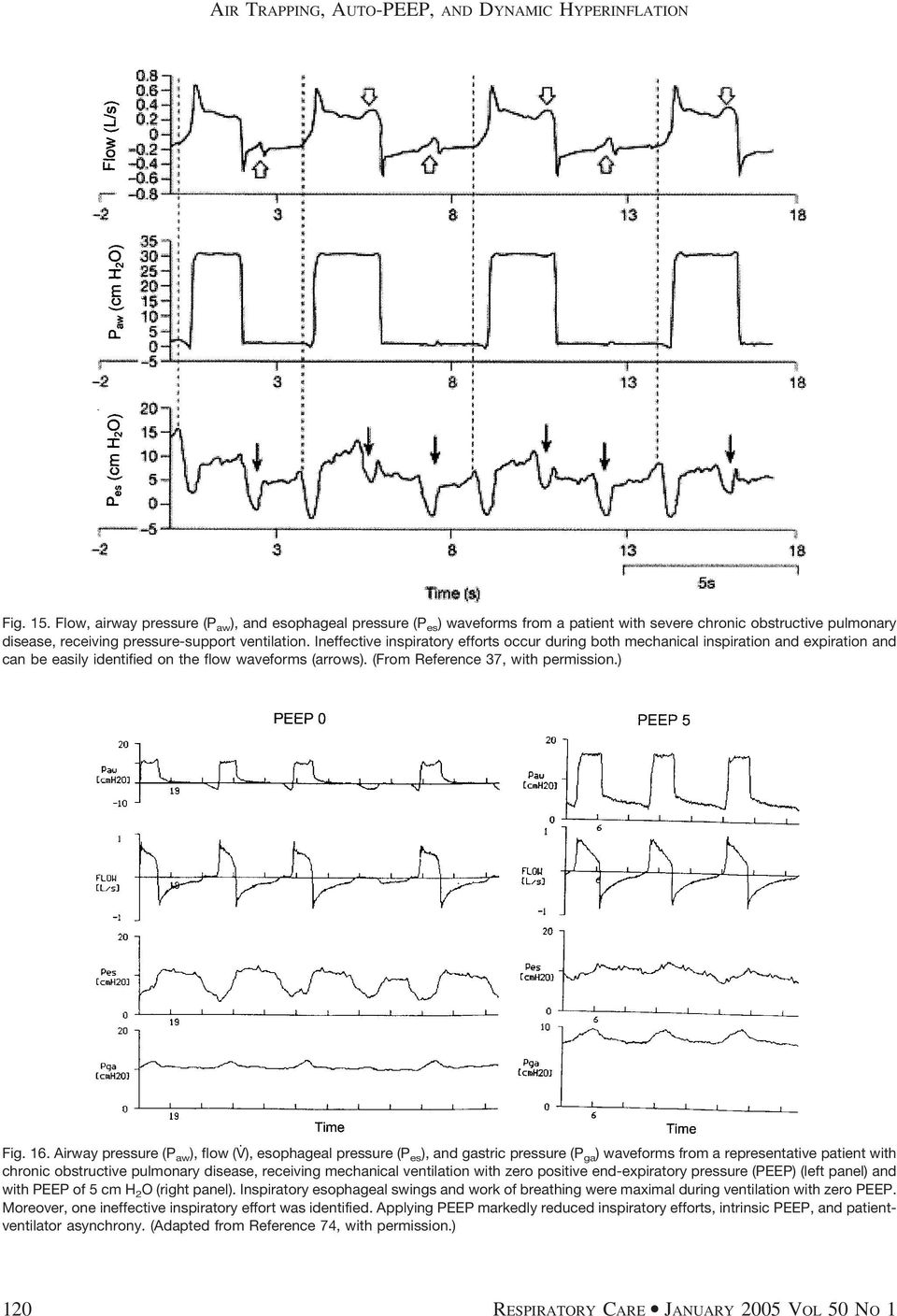 Airway pressure (P aw ), flow (V ), esophageal pressure (P es ), and gastric pressure (P ga ) waveforms from a representative patient with chronic obstructive pulmonary disease, receiving mechanical