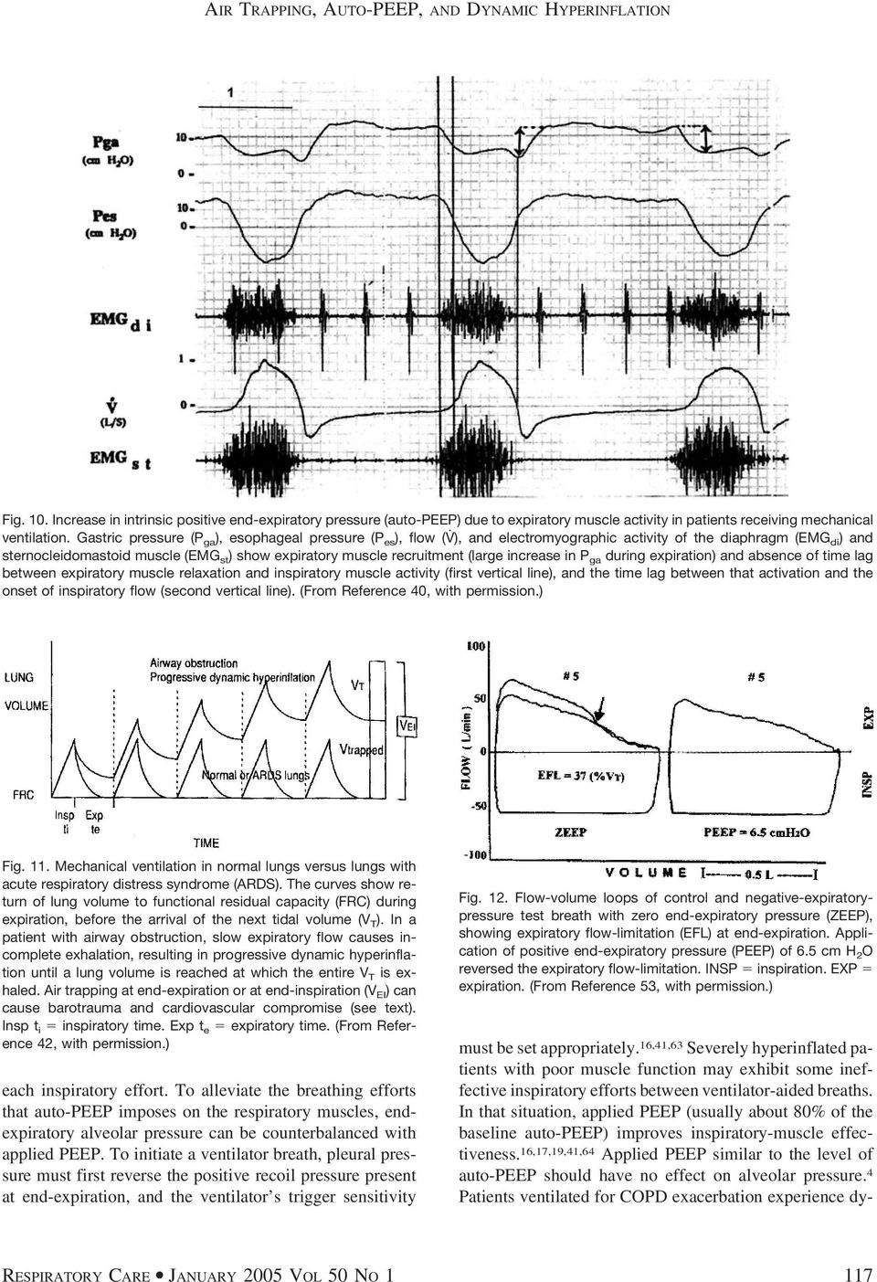 (large increase in P ga during expiration) and absence of time lag between expiratory muscle relaxation and inspiratory muscle activity (first vertical line), and the time lag between that activation