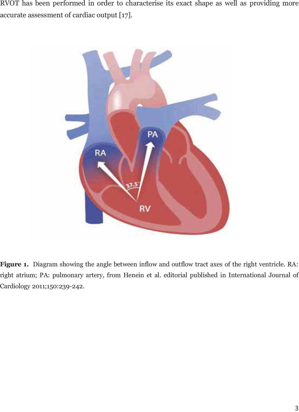 Diagram showing the angle between inflow and outflow tract axes of the right ventricle.