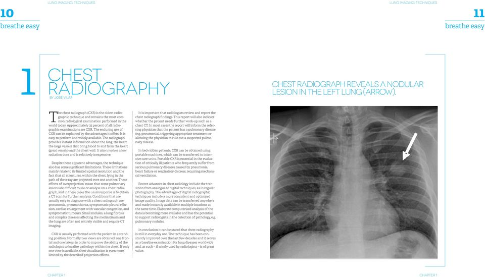 Approximately 25 percent of all radiographic examinations are CXR. The enduring use of CXR can be explained by the advantages it offers. It is easy to perform and widely available.