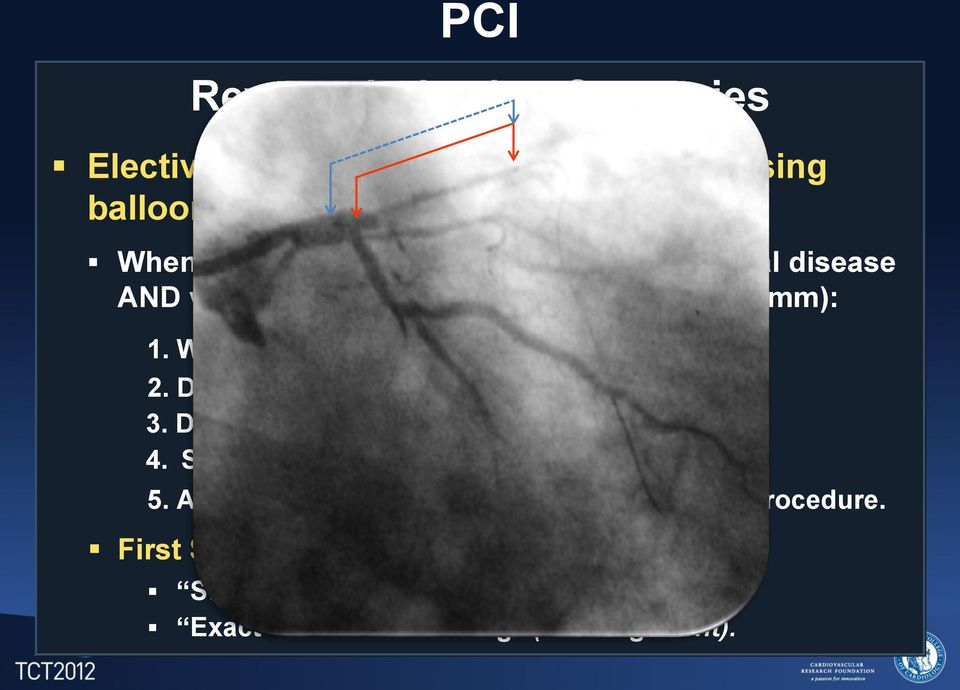 Wire both branches, LAD and Cx. 2. Dilate LAD. 3. Dilate Cx only if needed. 4. Stent LAD leaving a wire in Cx. 5.