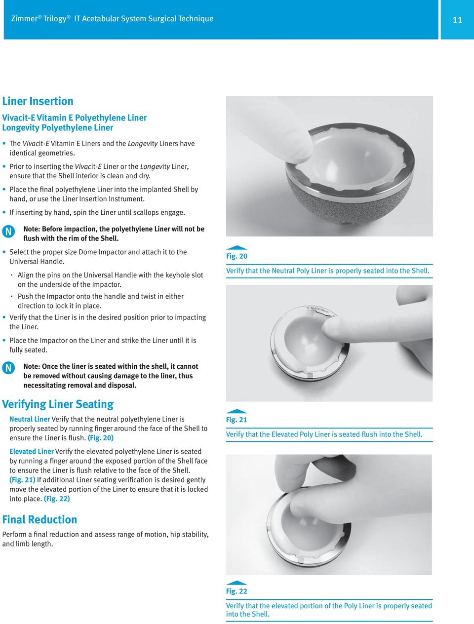 Place the final polyethylene Liner into the implanted Shell by hand, or use the Liner Insertion Instrument. If inserting by hand, spin the Liner until scallops engage.