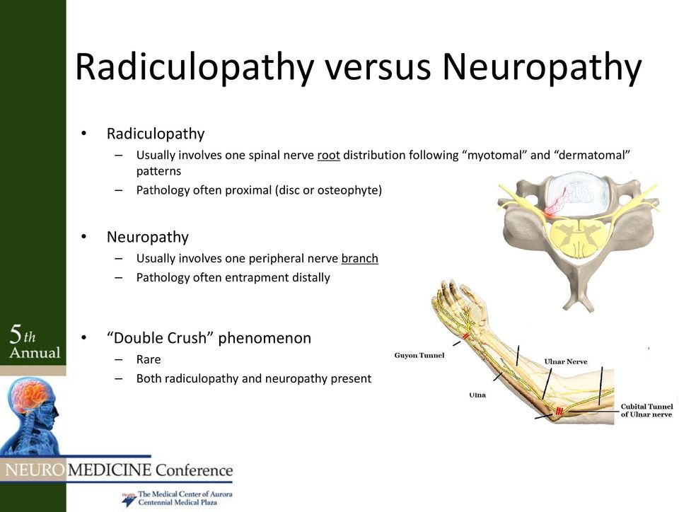 or osteophyte) Neuropathy Usually involves one peripheral nerve branch Pathology often
