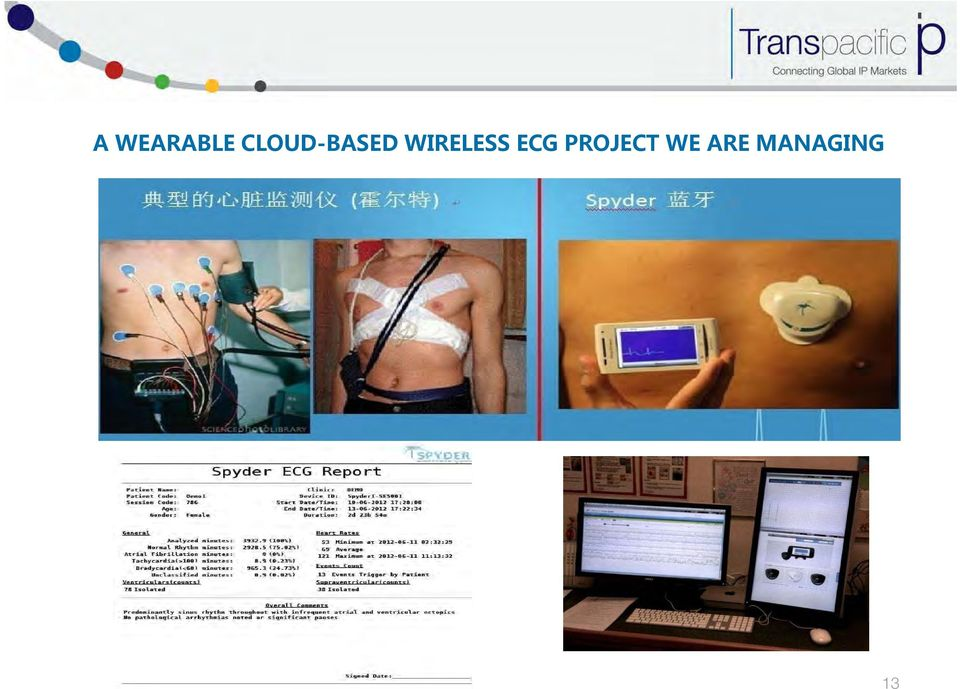 WIRELESS ECG