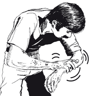 Safety and health in the use of agrochemicals Figure 44. Irritant injury (blistering caused by contact with toxic agrochemicals) put contaminated clothing back on.