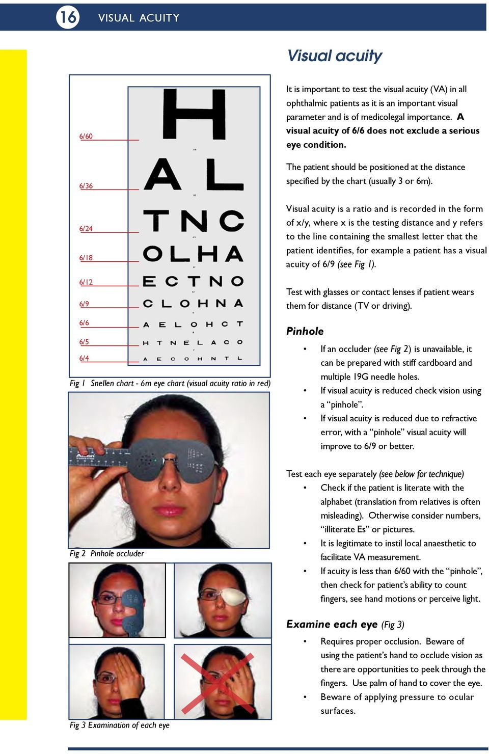 A visual acuity of 6/6 does not exclude a serious eye condition. The patient should be positioned at the distance speciied by the chart (usually 3 or 6m).