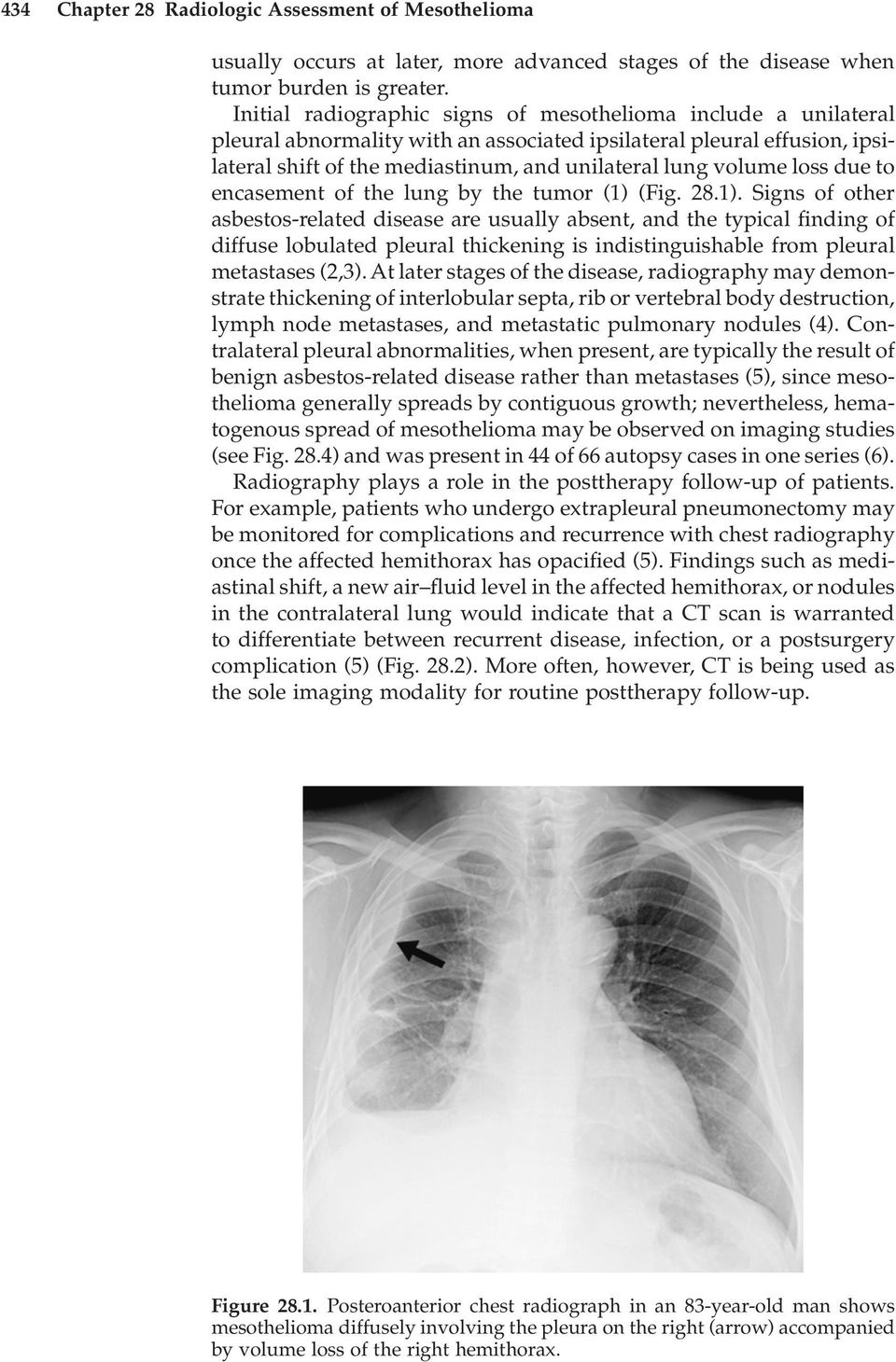 loss due to encasement of the lung by the tumor (1)