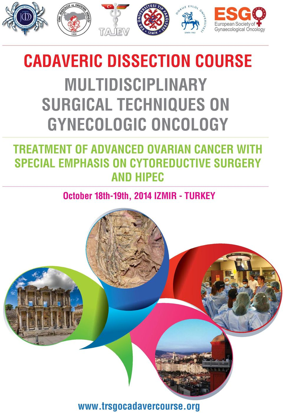 OVARIAN CANCER WITH SPECIAL EMPHASIS ON CYTOREDUCTIVE SURGERY