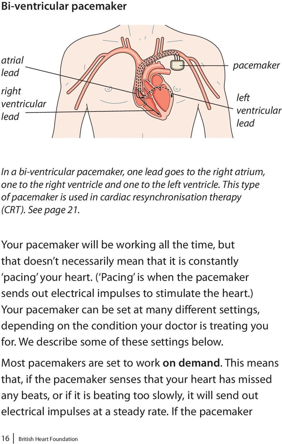 Your pacemaker will be working all the time, but that doesn t necessarily mean that it is constantly pacing your heart.