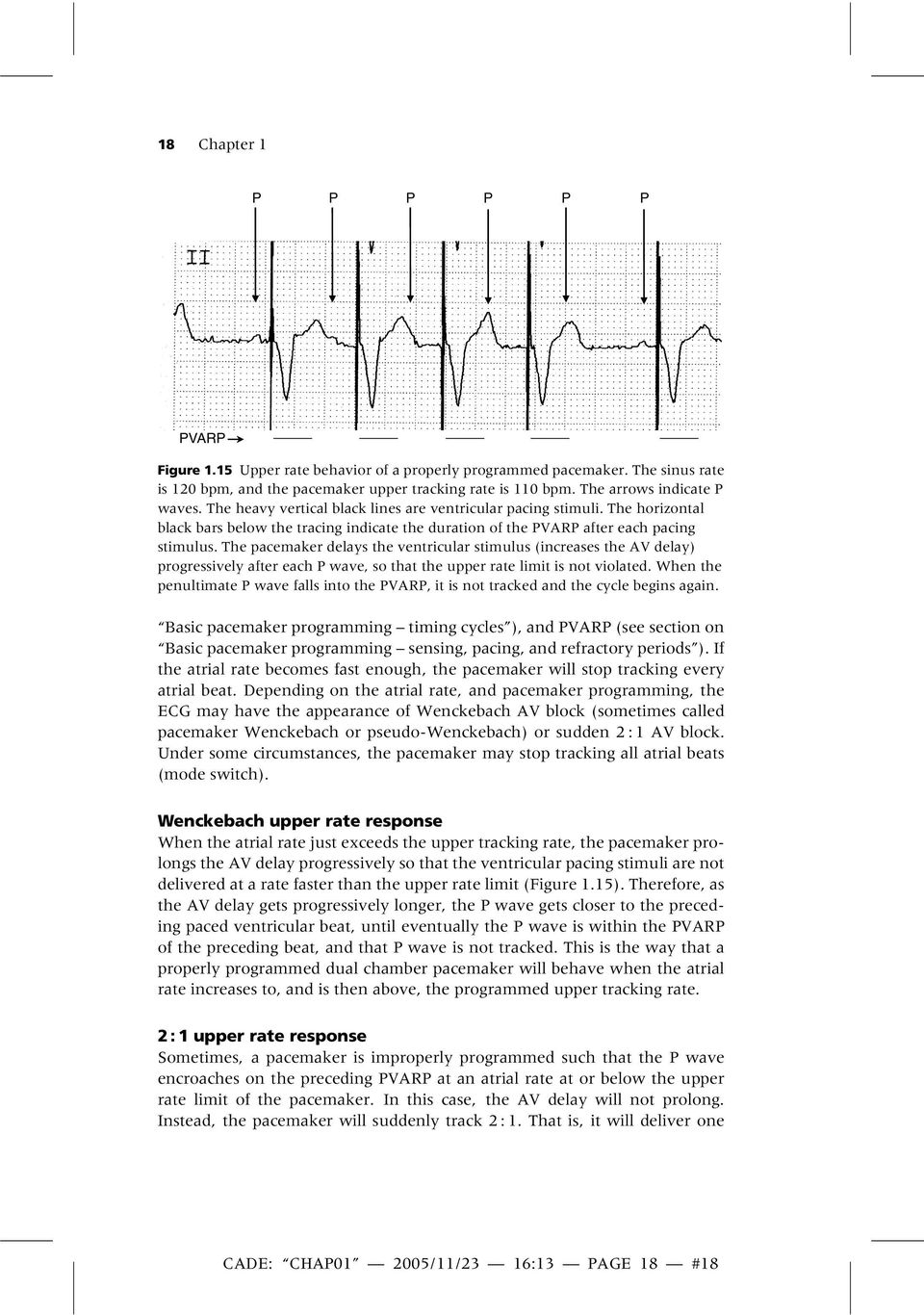 The pacemaker delays the ventricular stimulus (increases the AV delay) progressively after each P wave, so that the upper rate limit is not violated.