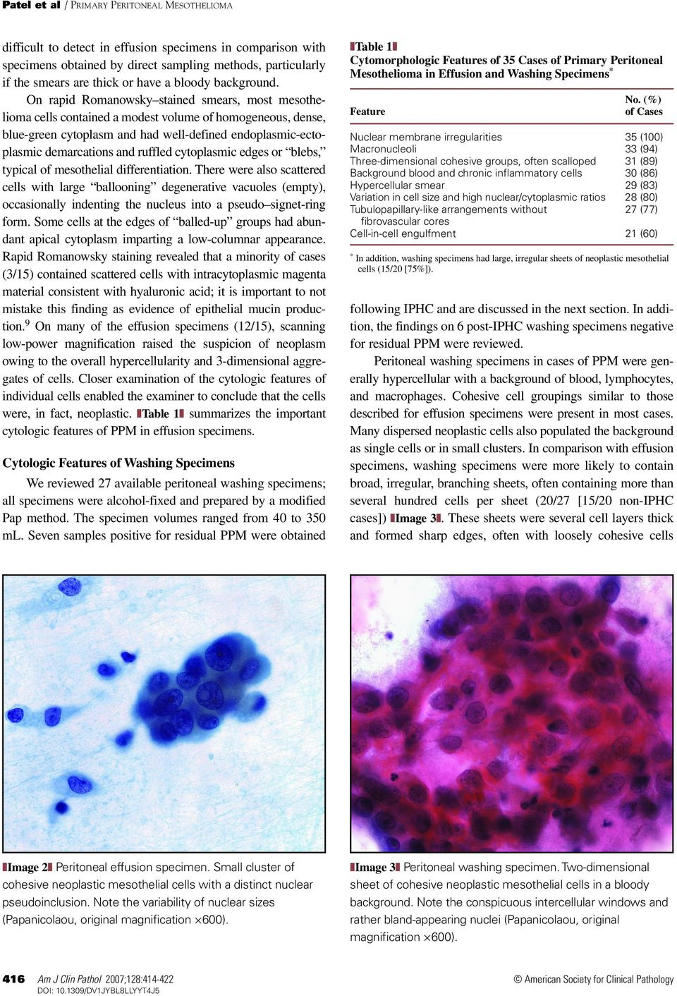 On rapid Romanowsky stained smears, most mesothelioma cells contained a modest volume of homogeneous, dense, blue-green cytoplasm and had well-defined endoplasmic-ectoplasmic demarcations and ruffled