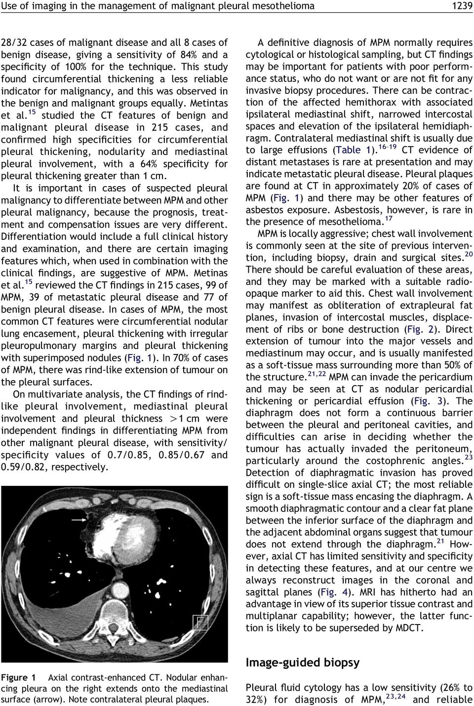 15 studied the CT features of benign and malignant pleural disease in 215 cases, and confirmed high specificities for circumferential pleural thickening, nodularity and mediastinal pleural