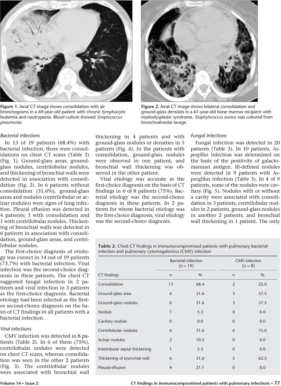 Staphylococcus aureus was cultured from bronchoalveolar lavage. Bacterial infections In 13 of 19 patients (68.4%) with bacterial infection, there were consolidations on chest CT scans (Table 2) (Fig.